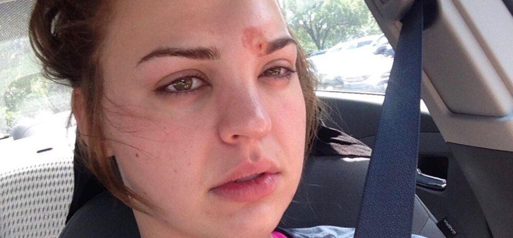 Hoiatav näide sellest, miks ei tohi kunagi oma punne ise pigistada: üks tüdruk tegi seda ja oleks peaaegu pimedaks jäänud