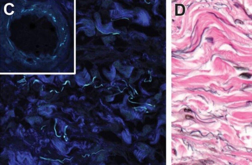 Inimkehast leiti järjekordselt uus organ? Mitte nii kiiresti