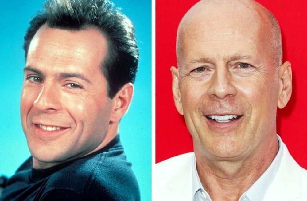 PILDID | 12 kuulsat kiilaspäist näitlejat enne ja pärast juuste kaotamist