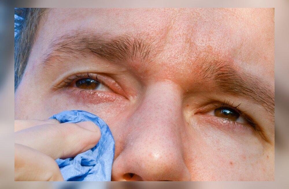 Когда закрываю глаз болит
