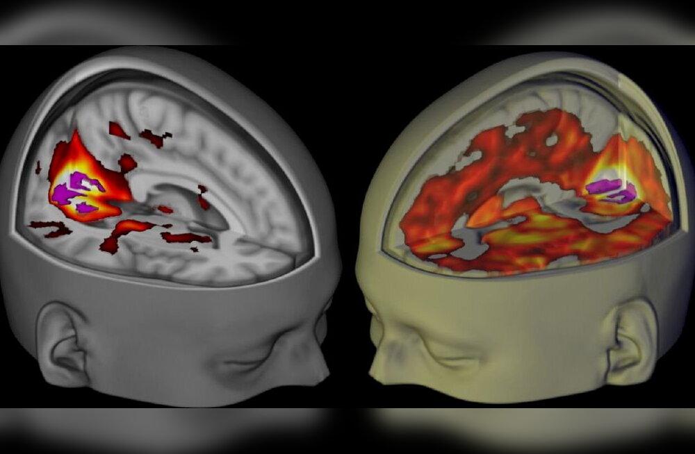 Silicon Valley loovuse salanipp: teadlased hakkavad testima pisikeste LSD-dooside mõju ajule
