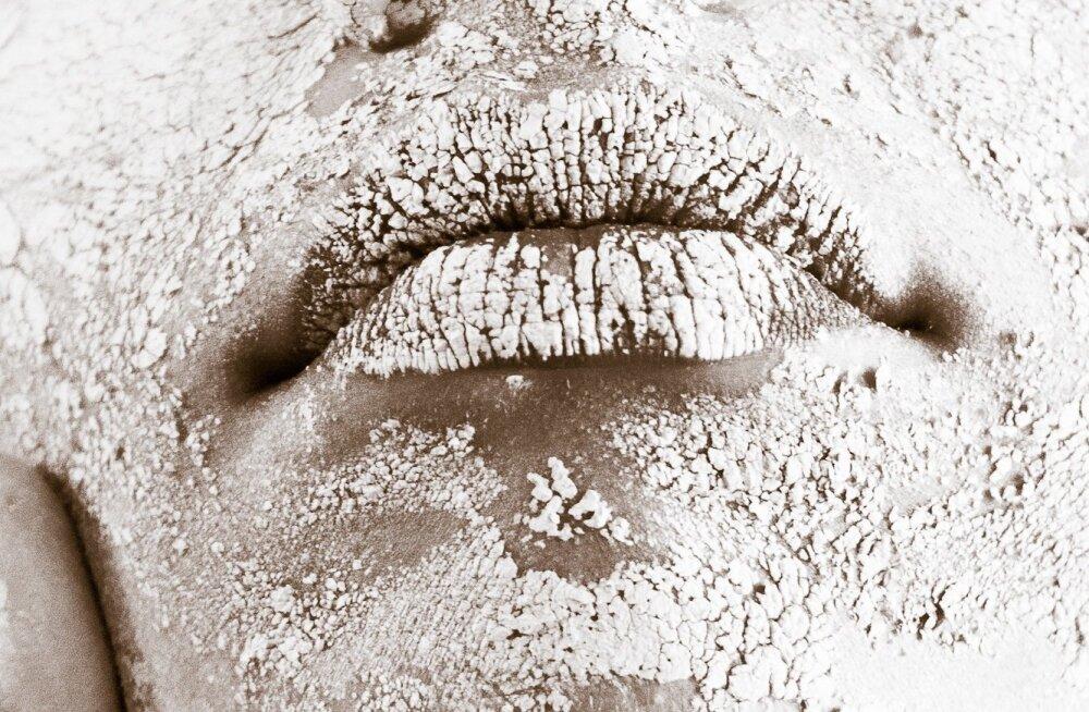 Akne ehk vinntõbi on üks enamlevinud nahahaigusi — kuidas sellest lõplikult vabaneda?