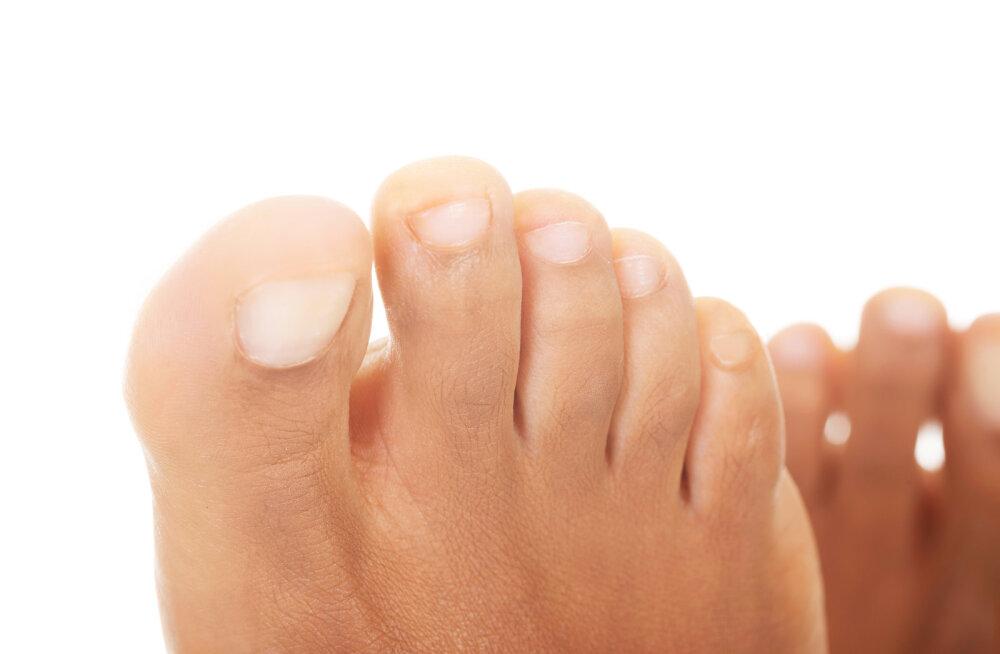 Ebamugavad nahaseened — mida neist teadma peaks?
