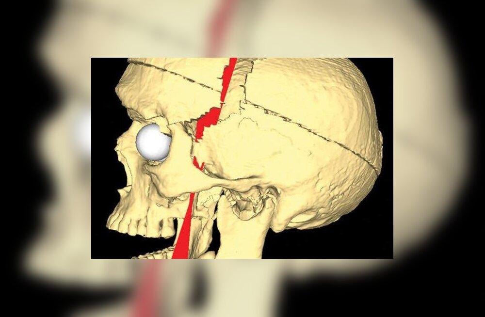 Raudkang läbistas mehe aju, aga ta elas veel üle kümne aasta hea tervise juures