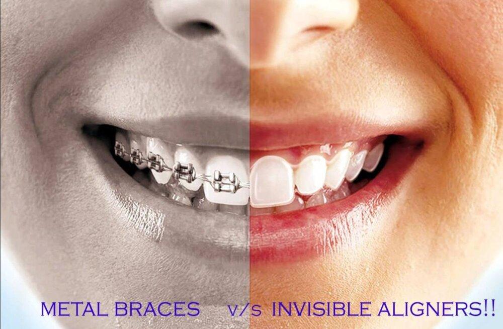 Hüvasti breketid ja traadid! Uueks trendiks on kaped, mis aitavad hammaste asendit parandada