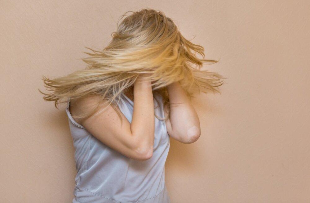 Naiste migreenihood on hullemad kui meestel. Teadlased arvavad, et teavad viimaks, miks