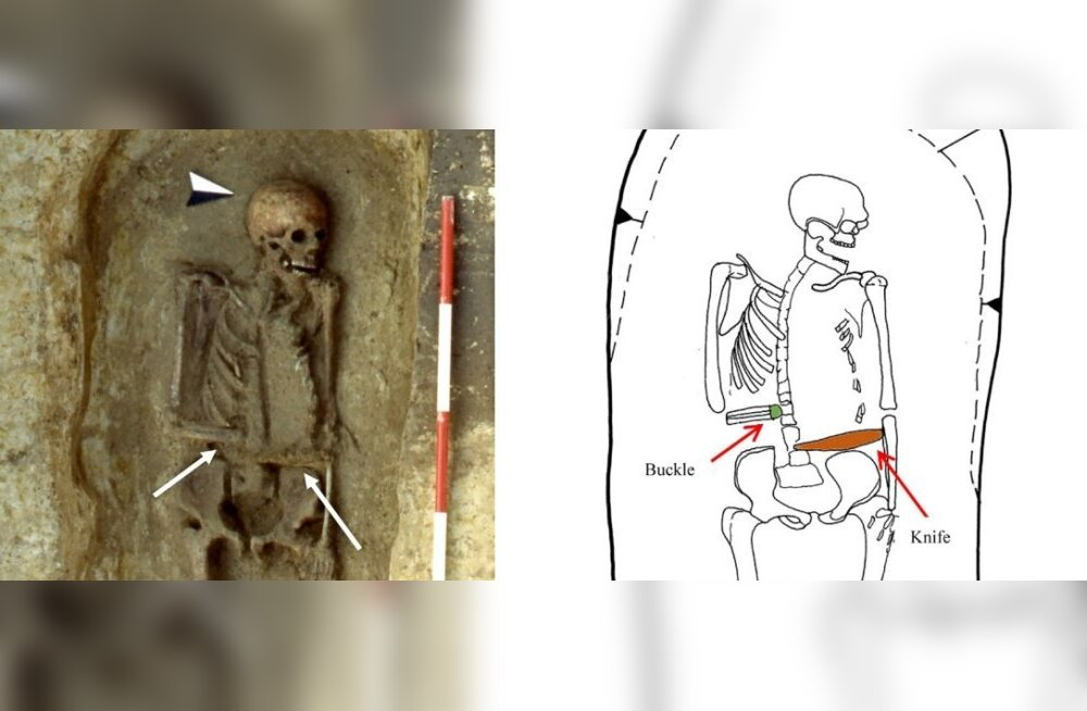 Kange mees: keskaegne langobardi sõdalane asendas amputeeritud käe relvaga