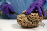 Teadlased arvavad, et müstilise déjà vu saladus võib olla lahendatud