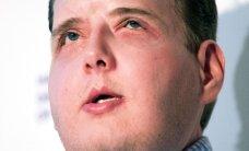 Aasta tagasi ajaloo põhjalikema näotransplantaadi saanud mees elab igati normaalset elu