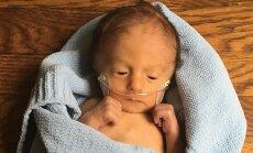 GALERII: Isa jagab fotosid oma üliraskelt haige poja esimestest elupäevadest