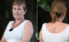 Uskumatu lugu: võhivõõras mees päästis naise elu, avastades tema seljalt melanoomi