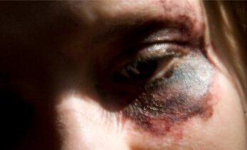 Olmetüli poe parklas: ärinaine lõi võõrast naist näkku