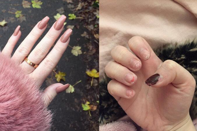 3d0fa09a1ab FOTOD | Unistad kaunitest akrüülküüntest? Üks tüdruk jagas fotosid sellest,  milline nende eelistamise tagajärg võib olla